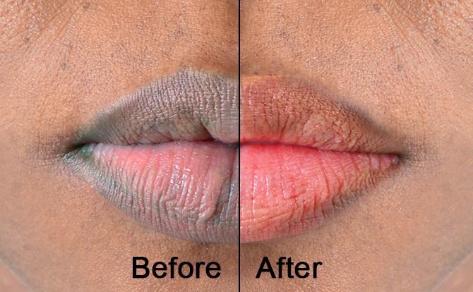 permanent pink lip lip therapy service